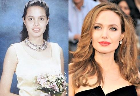 Celebs-antesdespues-Angelina Jolie