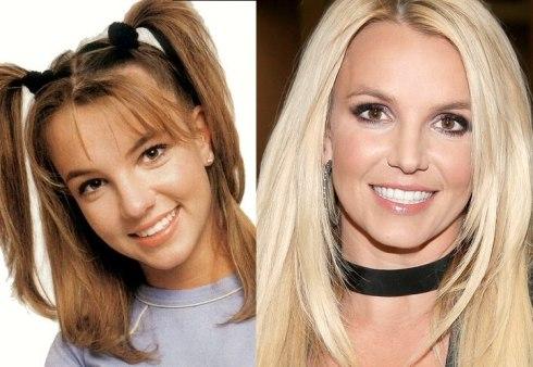 Celebs-antesdespues-Britney Spears